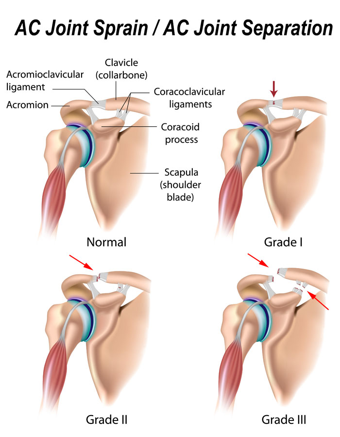 AC joint separation